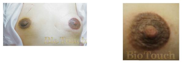 パラメディカルピグメンテーション乳輪/乳頭再建| 医療アートメイク | 新潟市の皮膚科 RIKA皮膚科・形成外科クリニック