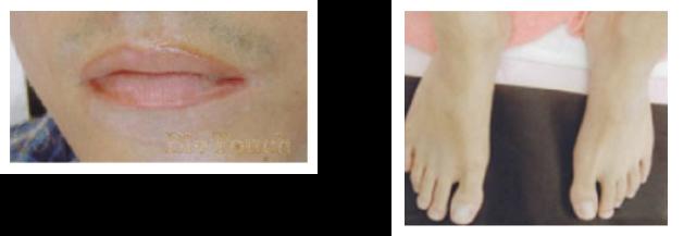 メパラメディカルピグメンテーション白斑| 医療アートメイク | 新潟市の皮膚科 RIKA皮膚科・形成外科クリニック